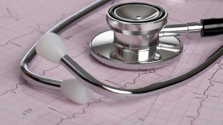 """Zahlreiche Herzinfarkte bleiben unbemerkt – sie verlaufen """"still"""""""