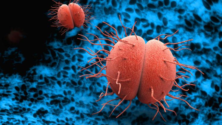 Die Rückkehr des Tripper: Aktuelle Antibiotika-Resistenz und Therapieversagen