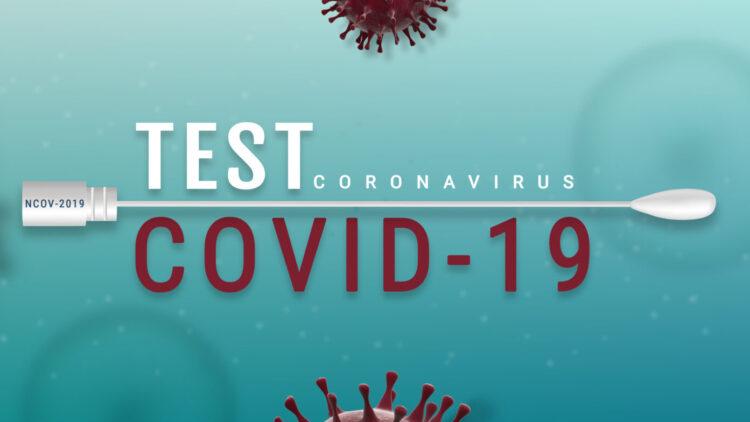 Durchführung von SARS-CoV-2 Antigen Test und PCR Test